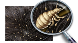 Beware of the Itch: How to Fight Lice and Mites