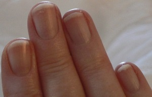 Survivopedia Finger Nail Beds Health