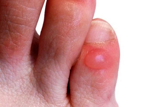 Fungal Nail Infections - Symptoms - WebMD
