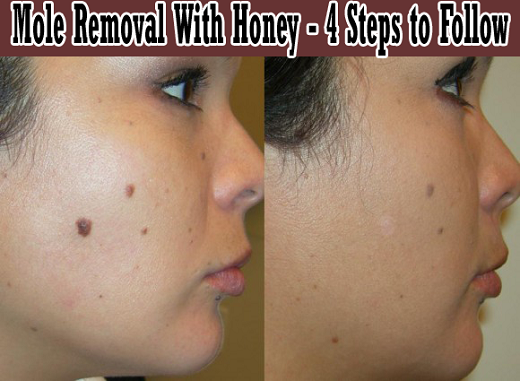 Profile of Woman Before and After Mole Removal With Honey