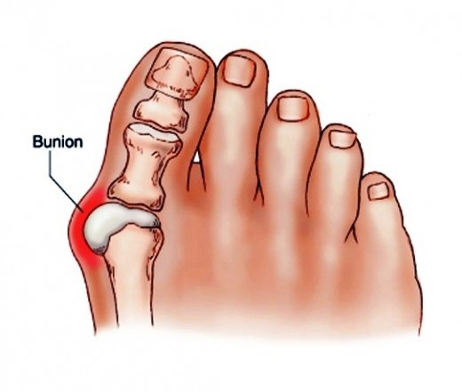 bunion drawing