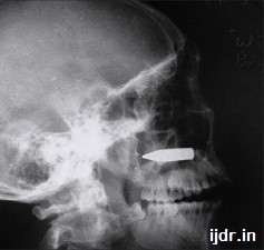XRAY of gunshot head wound