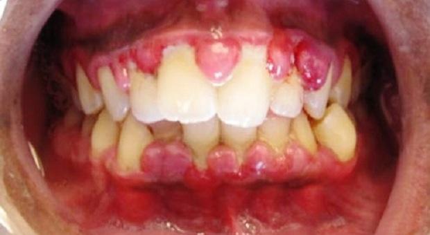 Инфекция на деснах фото