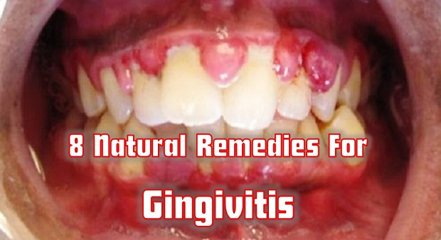 Survivopedia gingivitis