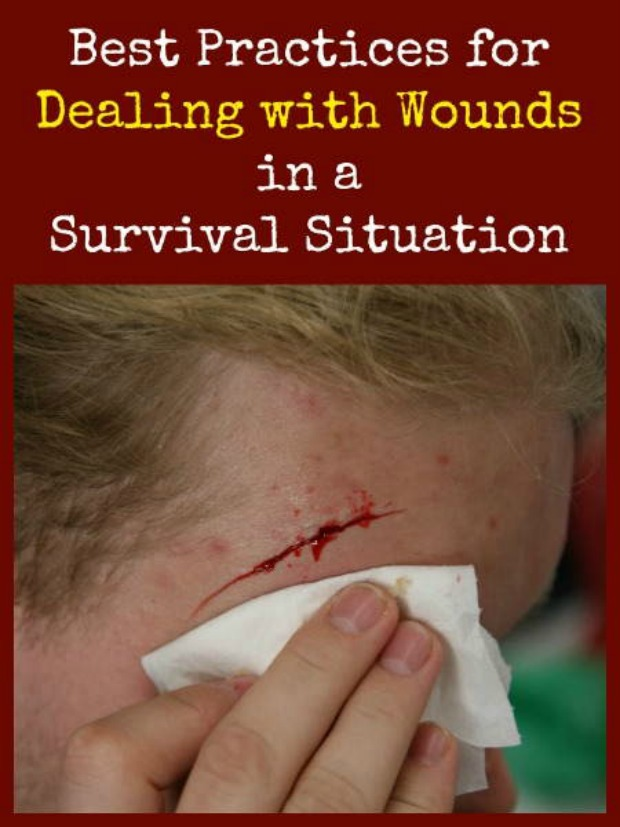 Dealing with wounds
