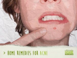 acne-feature-image-300x225