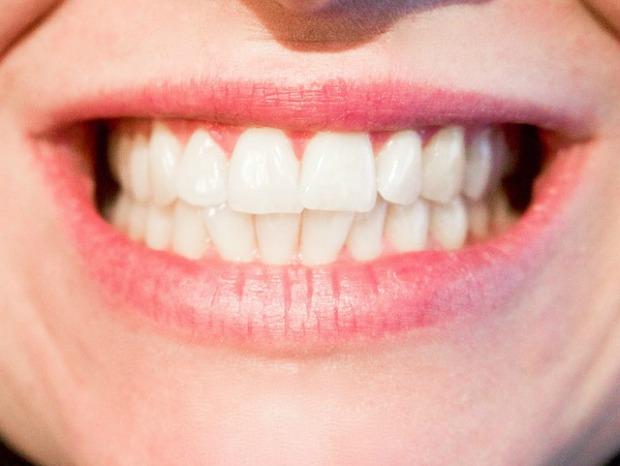 teeth-1652976_640